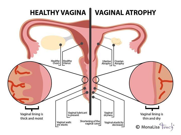 sociala media oskuld vaginal